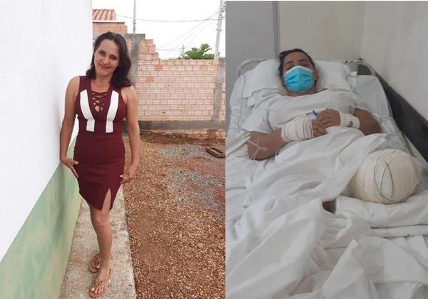 Sorriso: Edna, atropelada por caminhonete, teve perna amputada e aguarda por cirurgia no rosto; Motorista ainda não foi preso nem se entregou