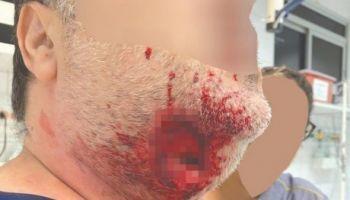 Médico tem lesão grave no pescoço ao ser mordido por paciente