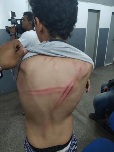 Padrasto tenta atropelar e espanca garoto de 14 anos com cabo de vassoura